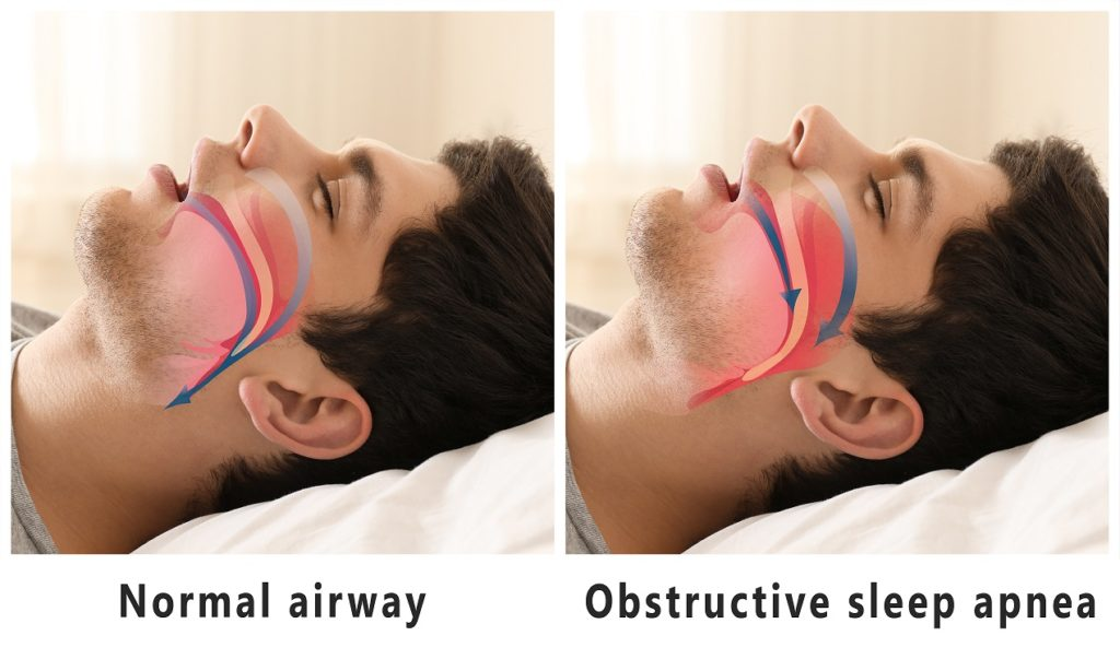 Illustration of Normal and Obstructive Sleep Apnea Airway Of Toronto Patient